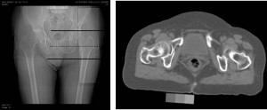 Quantitative computed tomography (QCT) images of hip bones. (T. Lang, University of California, San Francisco)